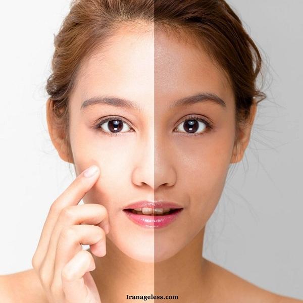 درمان لک پوستی