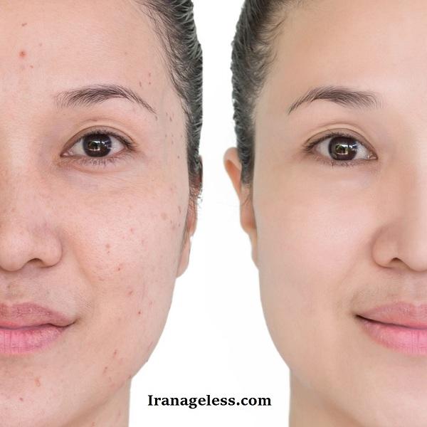 انواع جوش صورت و راههای درمان آن